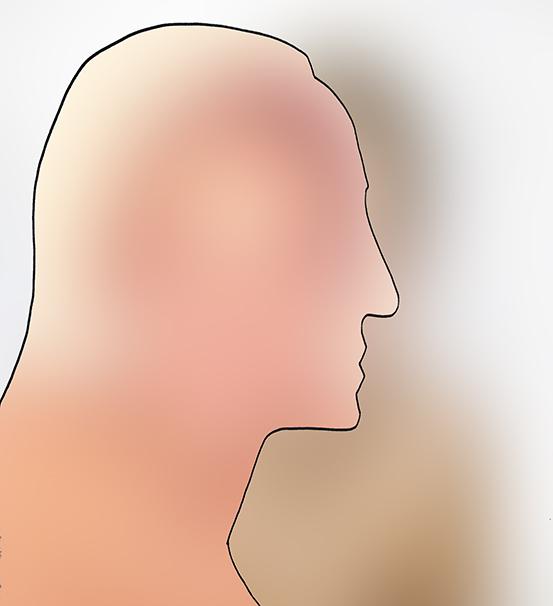 Gesicht seitlich